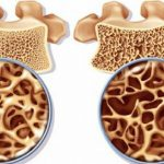 اقداماتی برای پیشگیری از ابتلا به بیماری پوکی استخوان!