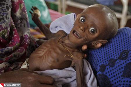 این نوزاد چه بود و چه شد + تصاویر
