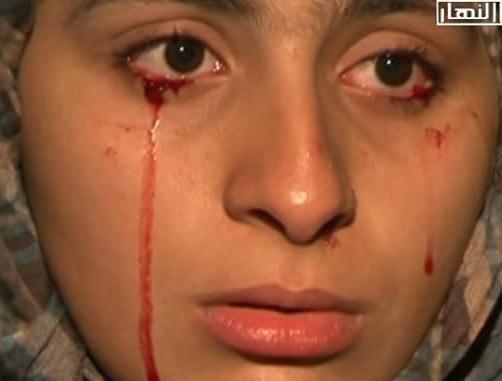 این دختر۲۰ ساله سنگ و خون می گرید + عکس