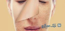 رابطه کبد و زیبایی پوست صورت