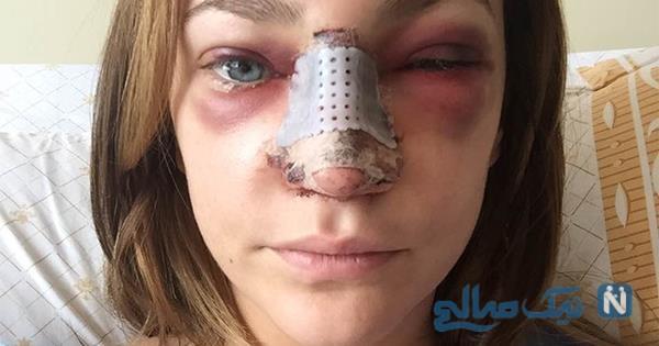 ورم بینی بعد از عمل زیبایی