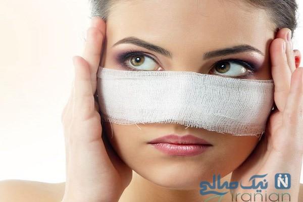 تورم بینی بعد از عمل جراحی