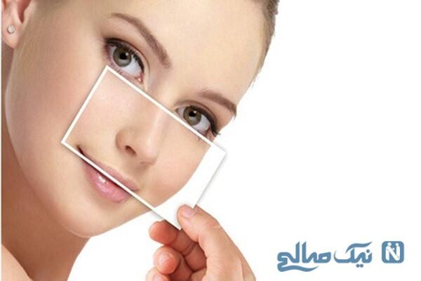 زیبایی بینی بدون جراحی