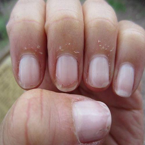پوسته پوسته شدن ناخنها را چطور برطرف کنیم