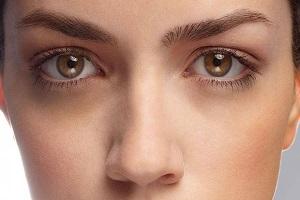 روش خانگی برای از بین بردن سیاهی دور چشم
