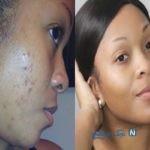برطرف کردن لکه های سیاه پوست با ماسکهای طبیعی