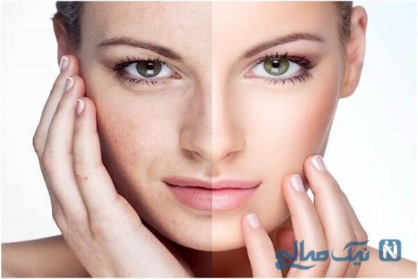 متداول ترین روش برای جوان سازی پوست چیست؟