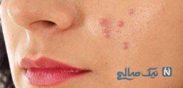 جوش صورت در هر قسمت از پوست نشانه چیست