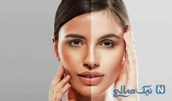روشن کردن پوست در خانه