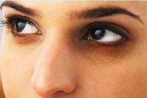 راههای سریع برای از بین بردن سیاهی دور چشم
