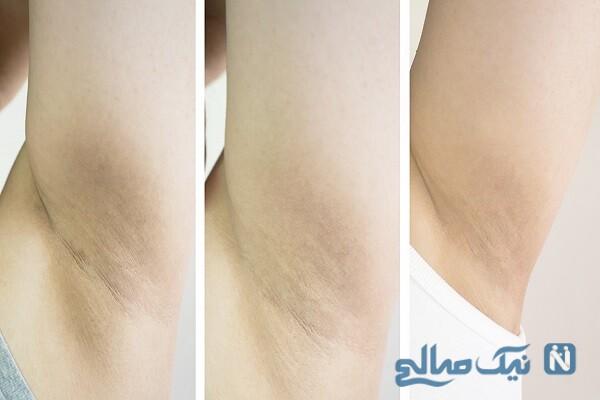 سفید کردن پوست زیر بغل