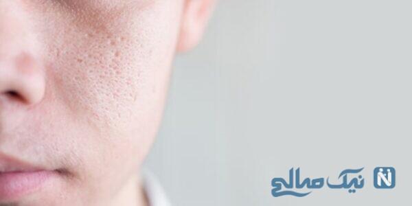درمان منافذ پوست