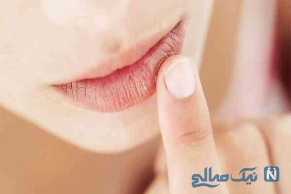 اگر لب هایتان پوسته پوسته میشود حتما بخوانید!