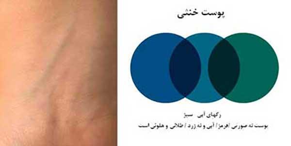 روش تشخیص رنگ پوست