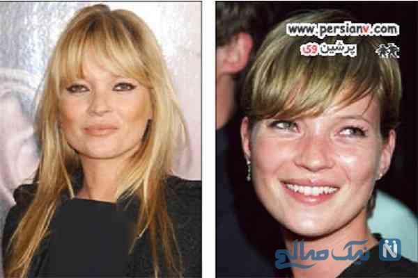 تصاویری از تغییر چشمگیر ستاره های زن پس از کوتاهی مو +عکس