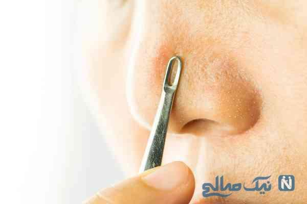 رفع دانه های سیاه بینی