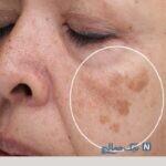 بهترین راه درمان برای لکه های قهوه ای پوست!