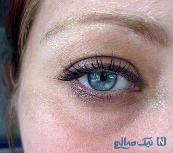 رفع سیاهی اطراف چشم