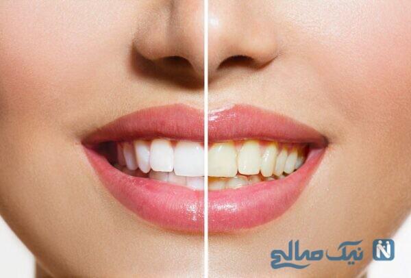 درمان خانگی زردی دندان