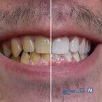 درمانهای خانگی برای رفع زردی دندانها
