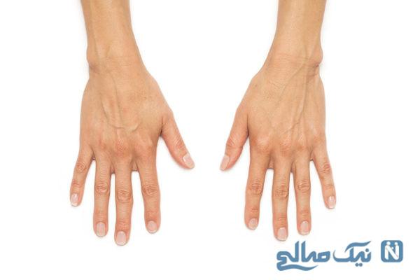 درمان پیری دست ها