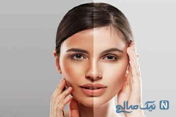 چگونه پوست خود را برنزه کنیم؟