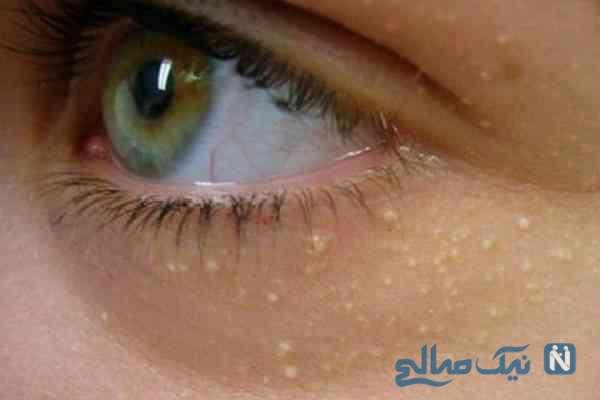 دانه سفید زیر چشم