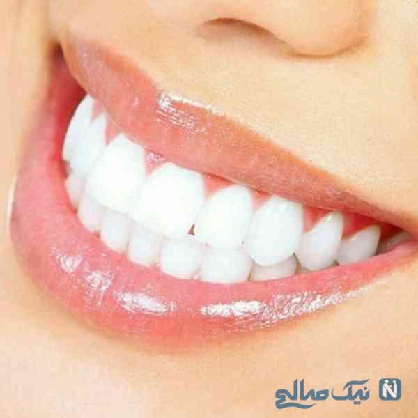 سفید کردن طبیعی دندان