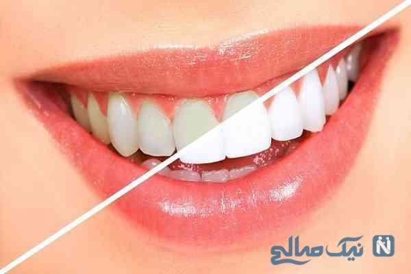سفید کردن و زیبایی دندانها با روشهای طبیعی