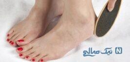 نرم کردن و از بین بردن زبری پا با این ماده