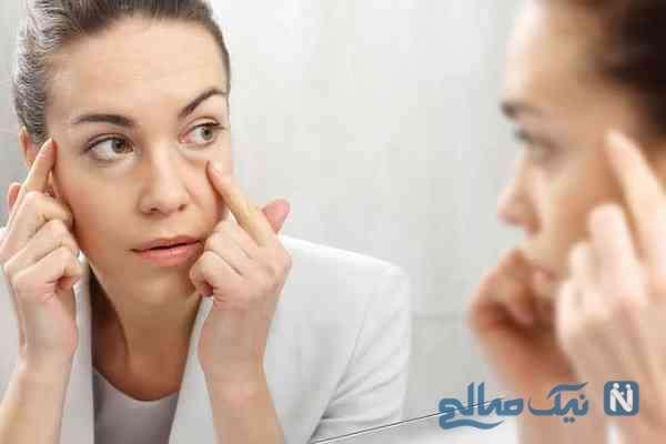 روش های خانگی درمان پف کردگی چشم