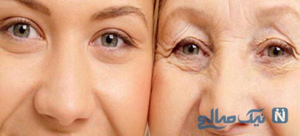 درمان گیاهی چین و چروک صورت