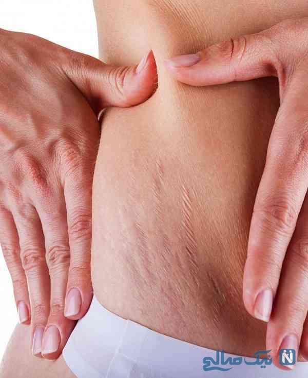 درمان ترک پوستی