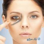 نحوه ی مراقبت از پوست دور چشم در تابستان