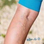 روشهای پنهان کردن رگ ها و واریس های پا