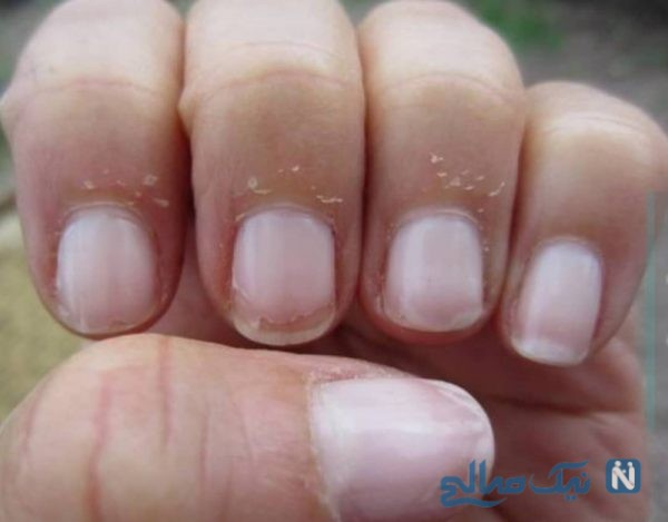 علل پوسته شدن انگشتان دست چیست؟