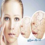 درمان کردن پوست خشک و خشن