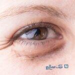 روشهایی برای درمان سیاهی دور چشم