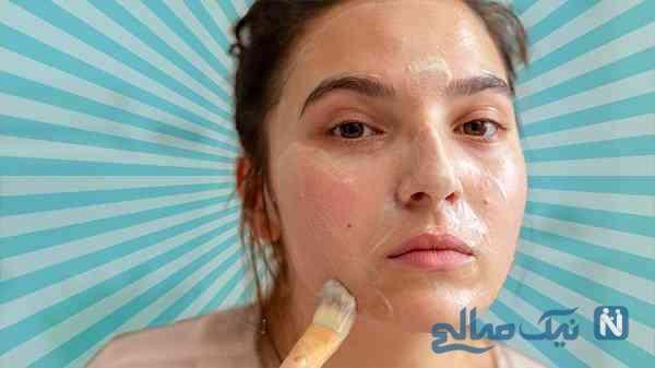 درمان جوش و آکنه صورت