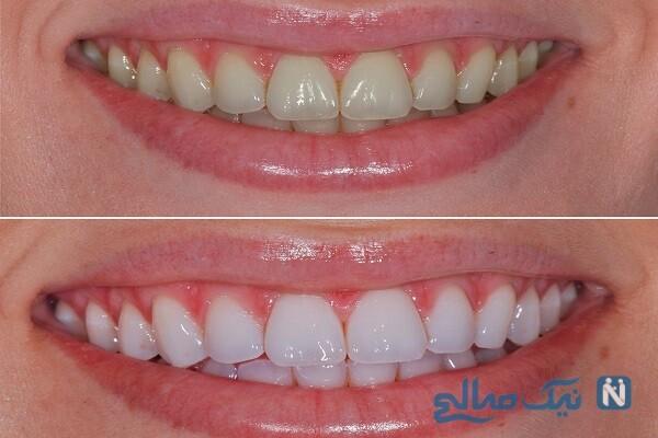 سفید کردن دندان با یک روش خانگی و موثر!