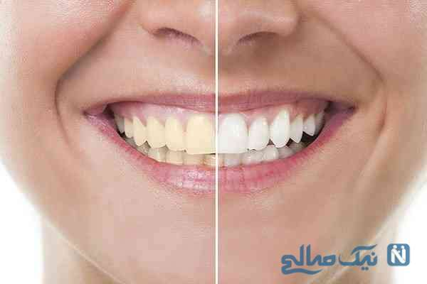 راهی برای داشتن دندان هایی سفید و درخشان