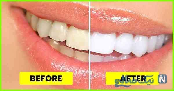 داشتن دندان های سفید