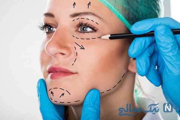 رواج چهرههای عروسکی با جراحی های زیبایی!