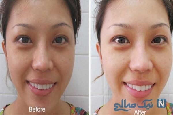 سفید کردن پوست تیره بدن با ترکیبی خانگی!