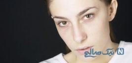 علت زردی پوست و رنگ پریدگی چهره چیست؟