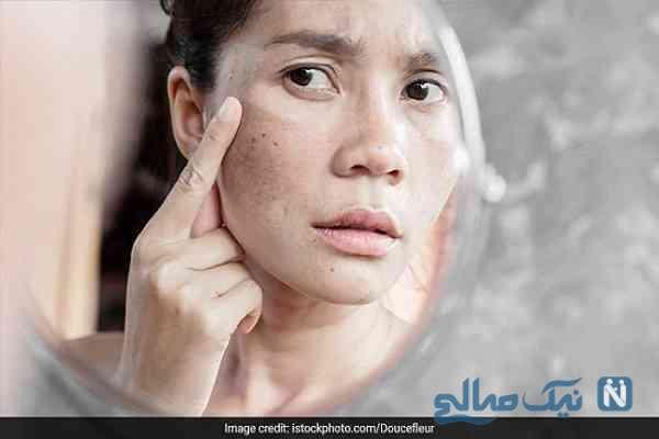 لک های تیره پوستی با چه عواملی پدید می آیند؟!
