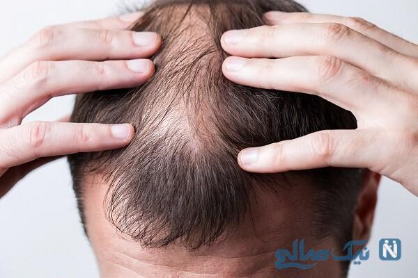تفاوت ریزش مو میان زنان و مردان !