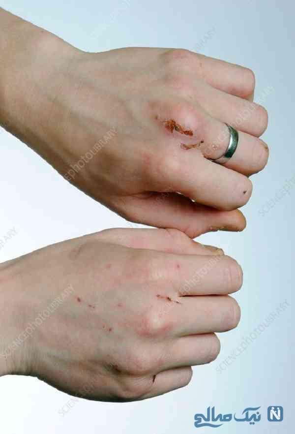 از بین بردن جای زخم