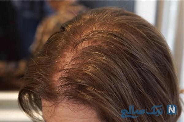 راه حل و درمان موهای کم پشت و کم حجم!