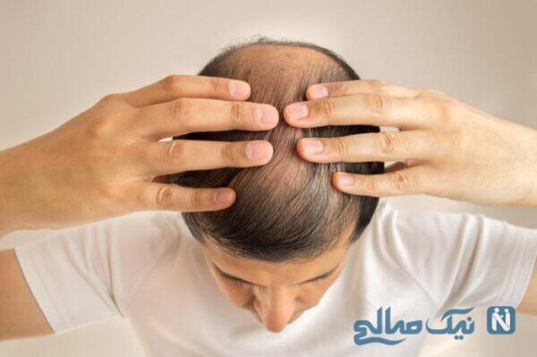 درمان کم پشتی مو